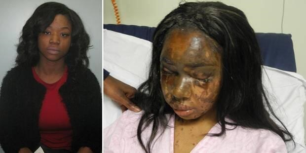 Mary Konye and acid attack victim Naomi Oni.